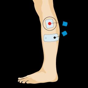 Eletroestimuladores e eletroestimulação para prevenir Entorse do tornozelo Peroneo