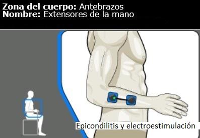 Epicondilite e tratamento com eletroestimulação