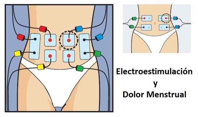 eletroestimulacao-e-dor-menstrual