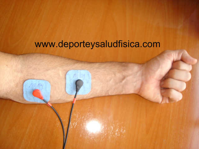 eletroestimulação antebraço contratura